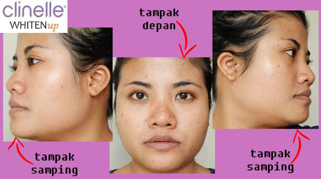 hasil pemakaian clinelle whitenup brightening series
