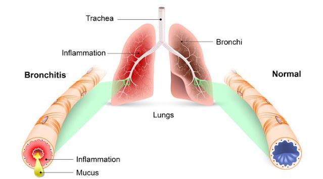 Pengobatan Sakit maag dan bronkitis dengan konsep karnus