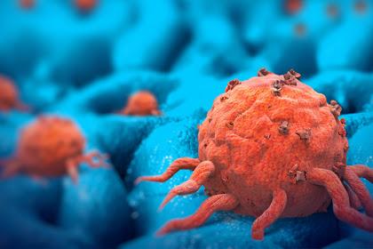 Obat Kanker Serviks: Tanpa Operasi, Lakukan Cara Alami Berikut dalam Mengatasi Kanker Serviks