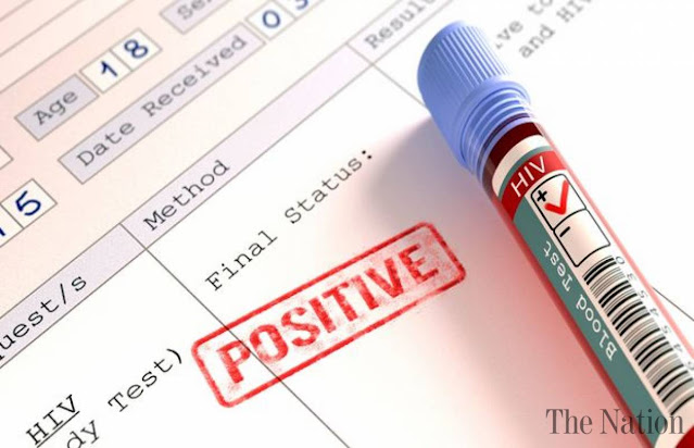 Muncul Reaksi Positif HIV, Australia Setop Tes Vaksin Corona