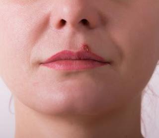 Como Eliminar El Herpes