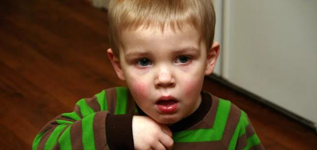 Komplikasi Alergi pada Anak