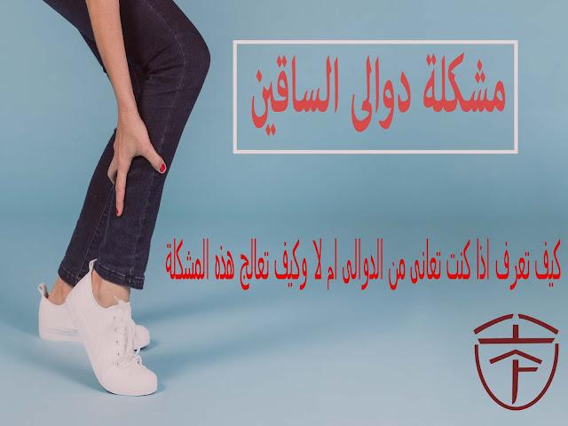 ما هى اسباب دوالى الساقين واعراض الدوالى وافضل 4 طرق لعلاج دوالى الساقين