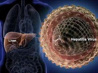 gejala hepatitis A di sebabkan oleh virus Hepatitis tipe A atau disebut HVA, menyerang organ hati