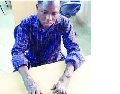 Man dumped in clay pot for 3 days, loses hands after torture by herbalist (Photo)