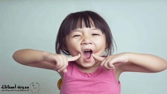علاج تسوس الأسنان عند الأطفال في البيت وعند الطبيب .
