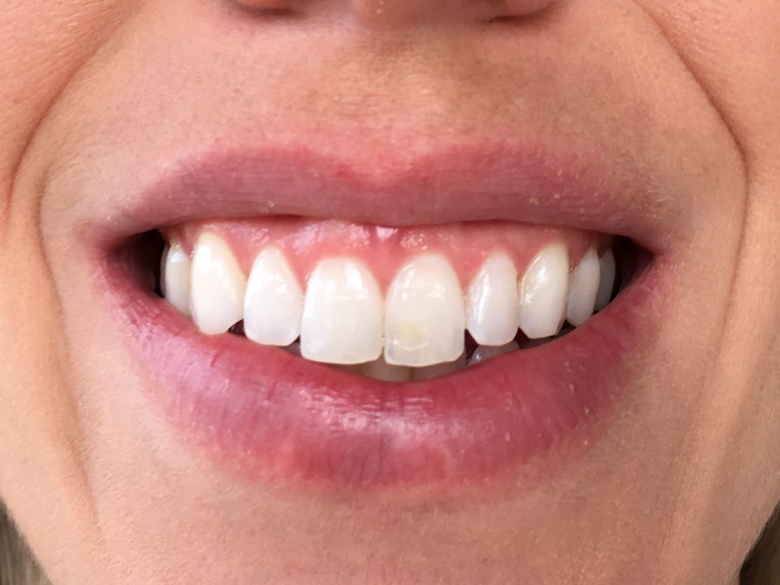 Smile Brilliant Teeth Whitening Impressions Day 4