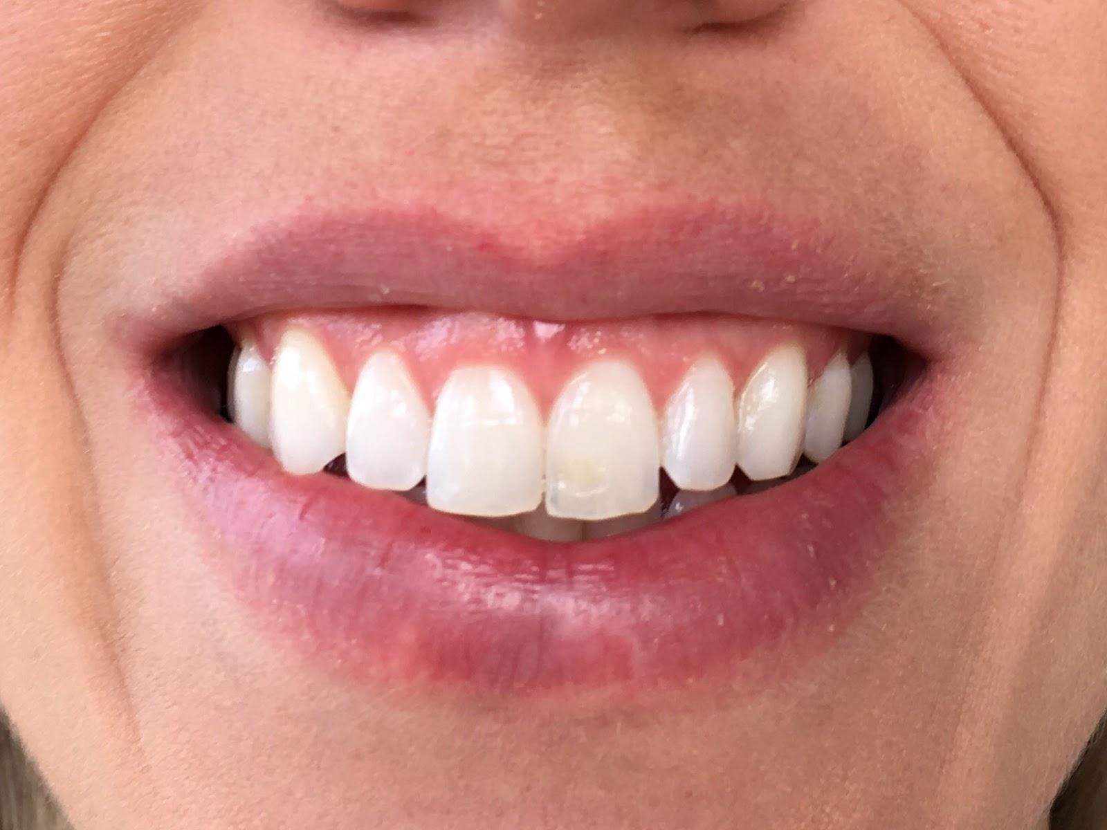 Smile Brilliant Teeth Whitening Impressions Day 4