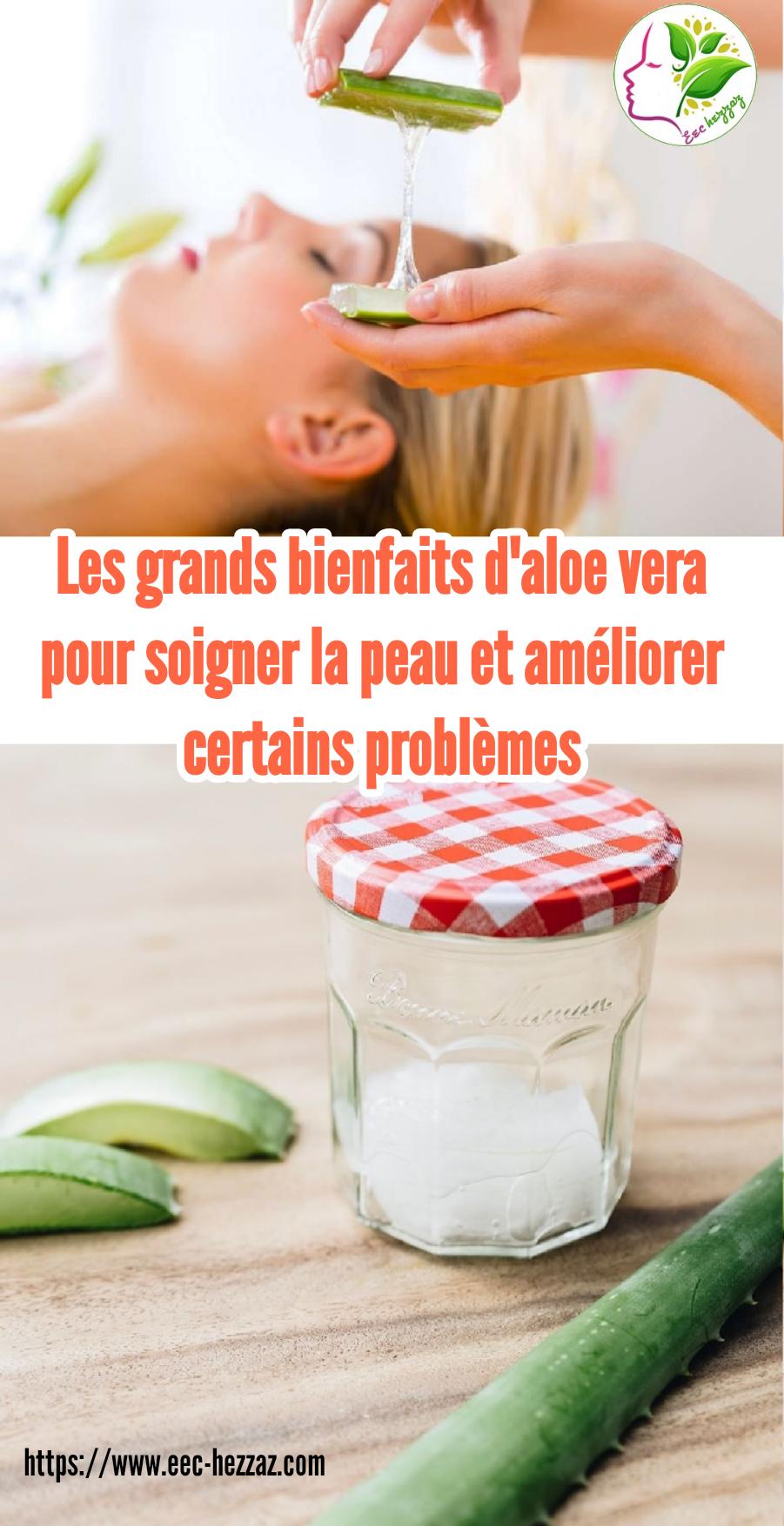 Les grands bienfaits d'aloe vera pour soigner la peau et améliorer certains problèmes