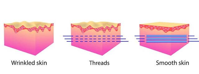how do threadlifts work