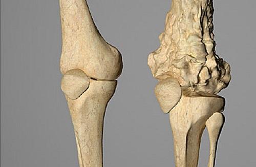 que es cancer a los huesos