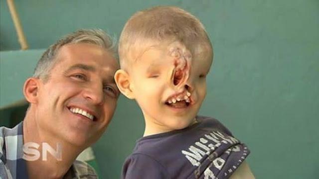 «Без Лица»: История Мальчика Из Марокко, От Которой Кровь Стынет В Жилах