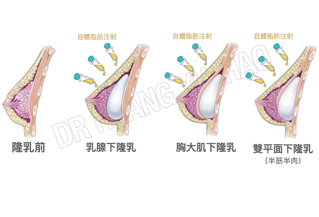 隆乳假體放置位置選擇