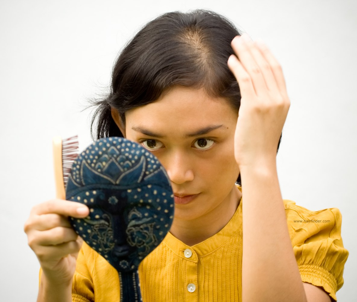 Solusi Paling Efektif Mengatasi Rambut yang Menipis