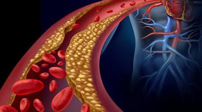 Hipercolesterolemia