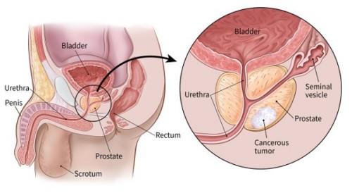 प्रोस्टेट कैंसर -Prostate cancer