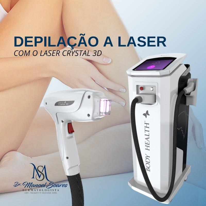 Depilação a laser se populariza e cai no gosto de quem conhece seus benefícios.