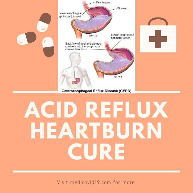 """Understanding and applying natural homeremedies for """"Acid reflux and Heartburn""""."""