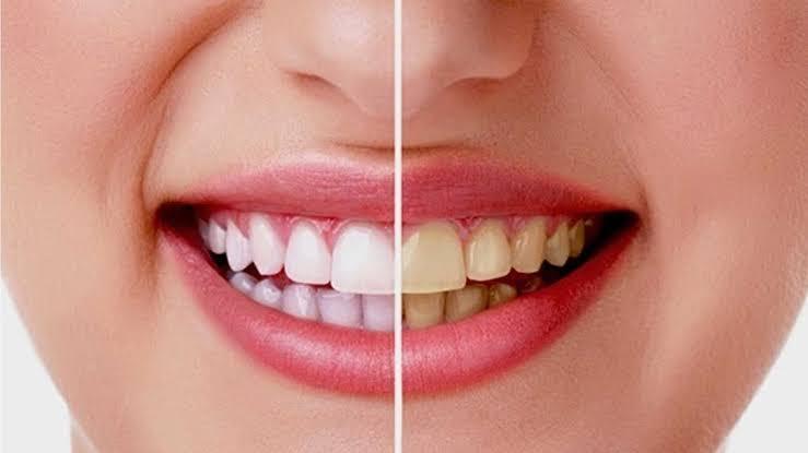 7 Cara Memutihkan Gigi Kuning Yang Membandel, Secara Alami