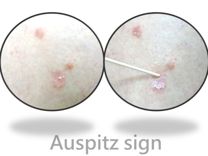 診斷乾癬-Auspitz sign