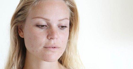 Manchas na pele : 10 truques e remédios naturais 100% eficaz