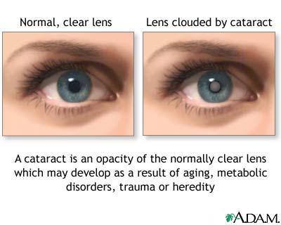 Nursing Care Plan (NCP) for Cataract