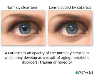 Nursing Care Plan (NCP) for Cataract