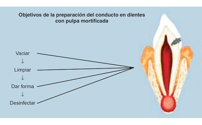 PDF: Preparación del conducto radicular: limpieza y conformación
