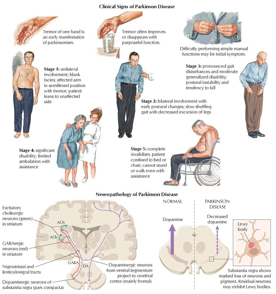 Parkinsonism: Symptoms and Defect