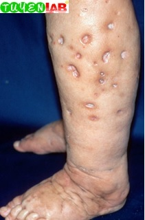 Dermatology] Atlas of Cutaneous Signs and Diagnosis (Part 3