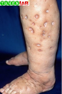 Fig. 2.52 Rounded scars and edema from skin popping.