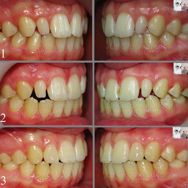 Фото до и после лечения  зубов с аномалией формы