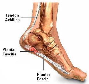 punca tapak kaki sebelah kanan sakit