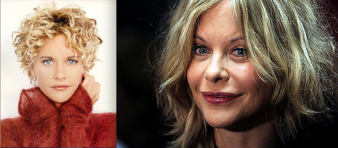List Of Celebs Worst Before And After Plastic Surgery