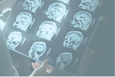 brain lesion treatment in chennai