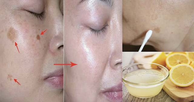 How To Get Rid Dark Spots, Dark Skin, Wrinkles And Acne Using Lemon