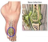Cara Mengobati Osteomyelitis