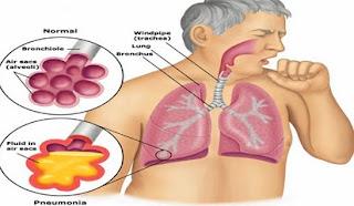 Penyebab dan Penanganan Penyakit TBC