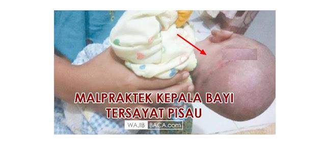 Diduga Salah Penanganan Medis Kepala Bayi ini Tersayat Pisau Saat Lahiran