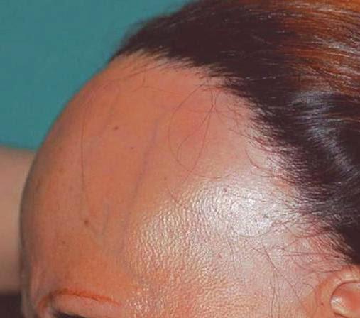 Minoxidil y alopecia frontal fibrosante
