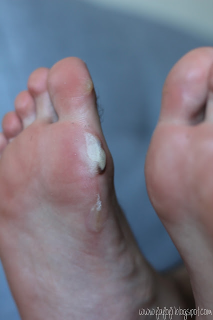 Male Foot Close Up of Blood Blister