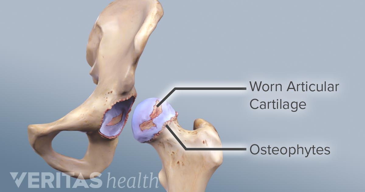 retete pentru artroza articulatiei soldului