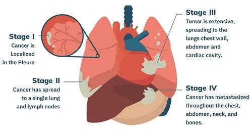 Prognosis of Stage 4 Mesothelioma 1