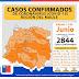 13 de junio: Cauquenes llega a 155 contagios de COVID-19 tras 12 nuevos casos confirmados.