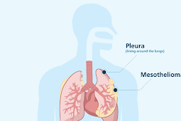 Mesothelioma - Causes, symptoms, and Diagnosis