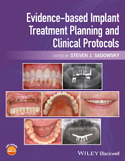 Evidence-based Implant Treatment Planning and Clinical Protocols