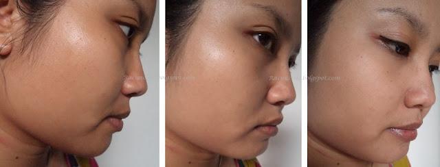 Perbandingan Muka Saya Sebelum Dan Sesudah Mengaplikasikan Produk