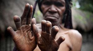 اغرب عادات و ثقافات من الشعوب حول العالم