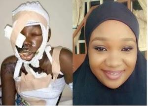 Photo: Beautiful University Undergraduate Lady Attacked With Acid Undergoes Successful Facial Surgery