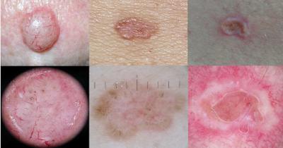 Skin cancer doctor Gold Coast